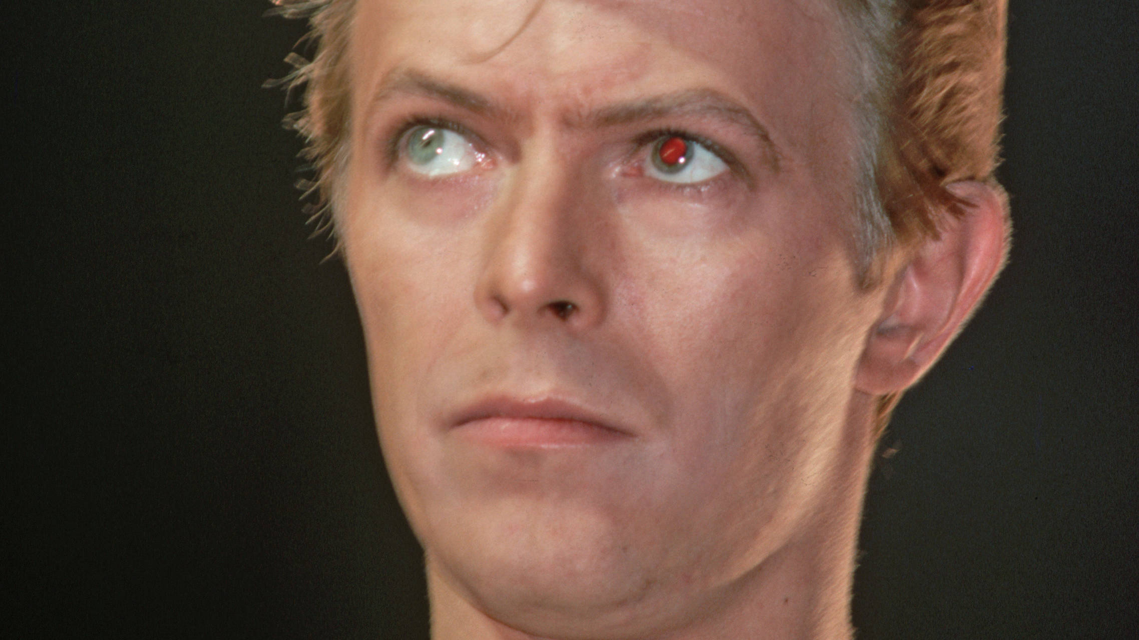 Did David Bowie really have different coloured eyes?