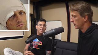 Tony Hawk looks back on his worst ever injury