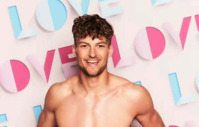 Love Island 2021 contestant Hugo Hammond was born with a club foot