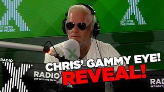 Chris Moyles reveals his swollen eye