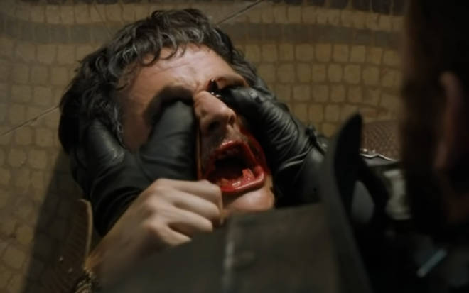 Oberyn's eyes were gouged out by Sir Gregor